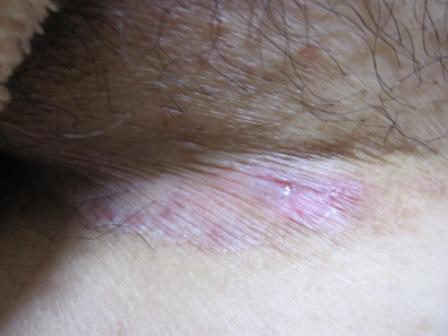 掻痒 症 皮膚 皮膚瘙痒症 (ひふそうようしょう)